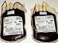 Blutkonserven werden immer benötigt.