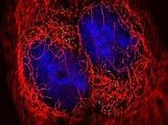 Das HI-Virus in lebender Zelle