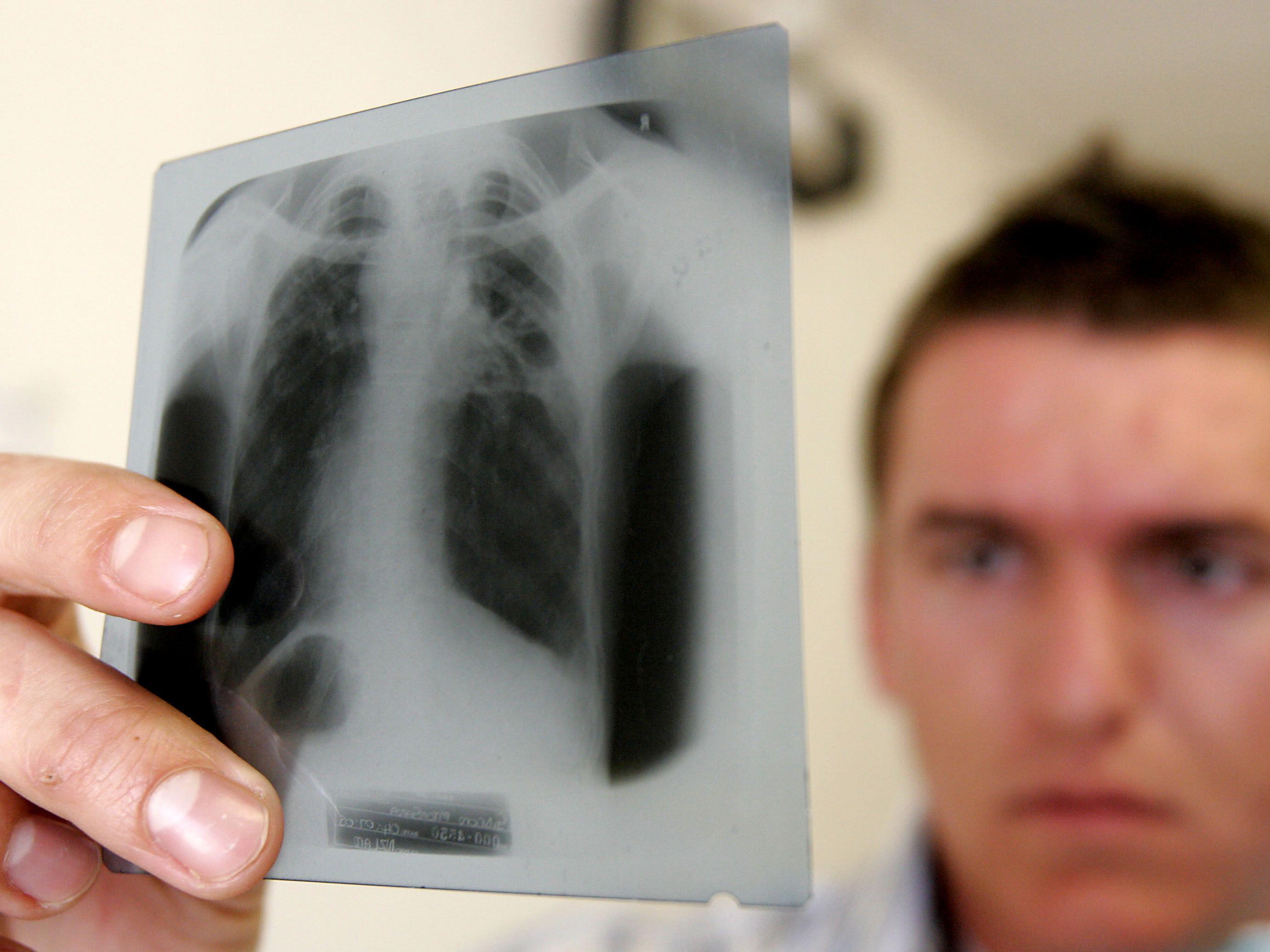 Der Tuberkulose-Bazillus zerstört vor allem die Lungen.