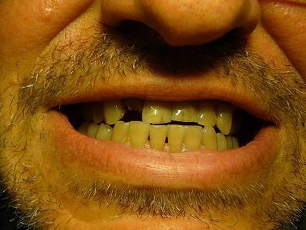 Von seinen Zähnen machte ein Betrunkener am Samstag Gebrauch