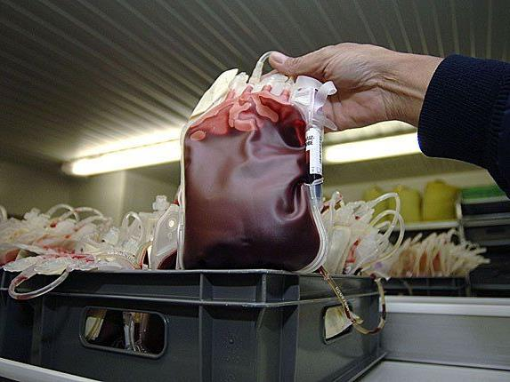 Eine mit HIV-infizierte Blutkonserve wurde einem Patienten verabreicht