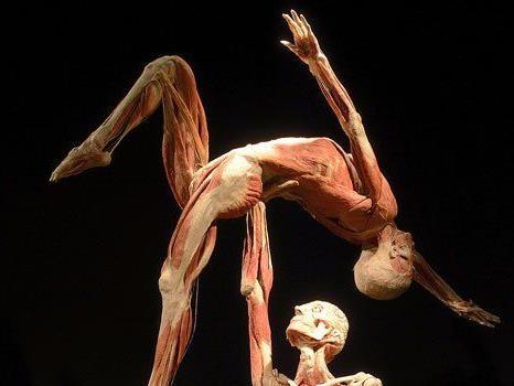 """Die """"Körperwelten""""-Ausstellung wird massiv angegriffen"""