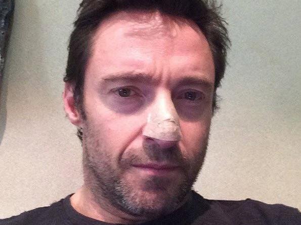 Hugh Jackman mit Pflaster auf Nase - wegen Hautkrebs behandelt