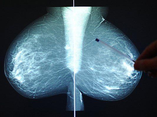 Neue Indikationenliste für Mammografie