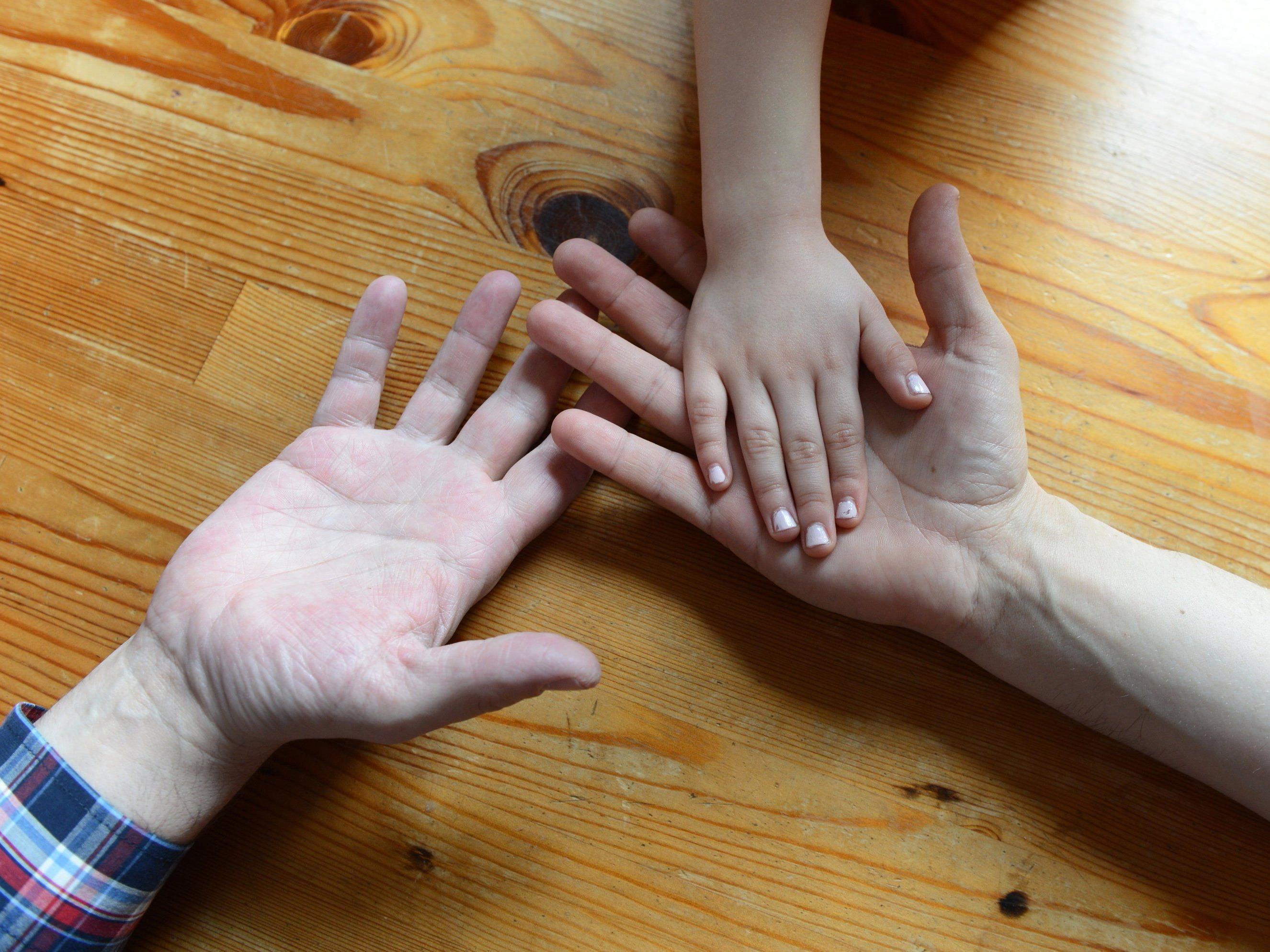 Homosexualität: Einzelpersonen haben kaum eine Chance auf Adoptivkind