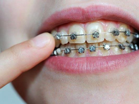 Das Projekt Gratis-Zahnspange steht noch auf wackligen Beinen.
