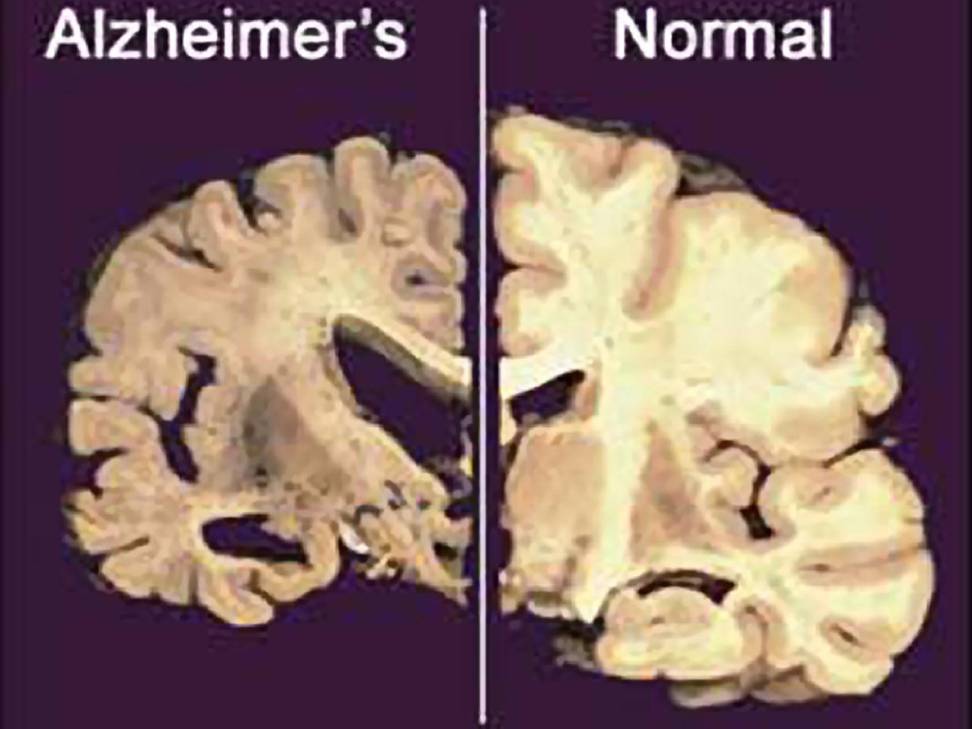Alzheimer könnte durch medizinische Eingriffe übertragen werden - kein Grund zur Panik.