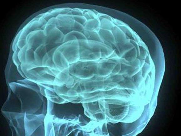 Forscher: Gehirne mit rein männlichen und rein weiblichen Kennzeichen sind deutlich in der Minderheit.