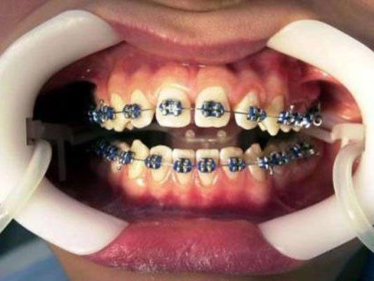 Die Gratis-Zahnspange kommt offenbar doch besser an als zunächst geglaubt.
