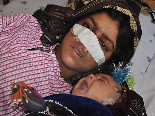 Ehemannn schnitt Frau die Nase ab