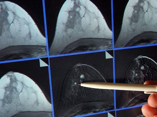 Zahlreiche Frauen nahmen bisher am Brustkrebs-Früherkennungsprogramm teil.