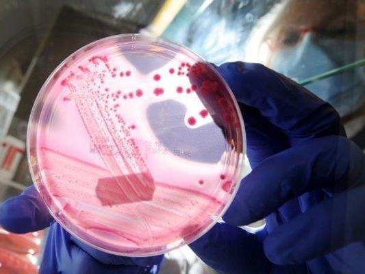 In NÖ wurden mehr Fälle von Noroviren bekannt.