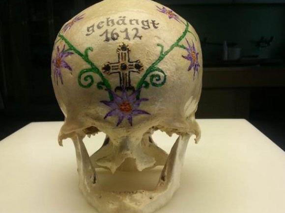Dieser Schädelknochen wurde in der Wiese in dem Spital in Ottakring gefunden