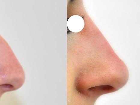 Nasenkorrektur ohne OP.