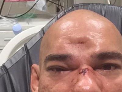 Der Schädel des Brasilianers wurde zertrümmert.