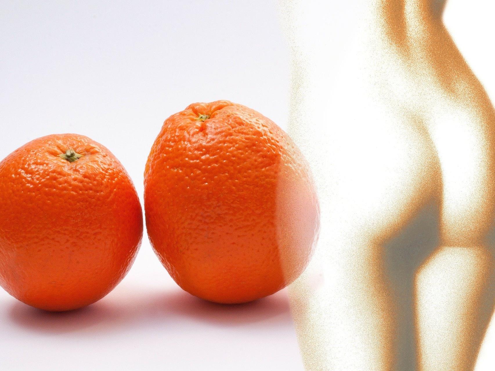 Es werden Produkte für zu Hause angeboten, die gegen Orangenhaut helfen sollen.