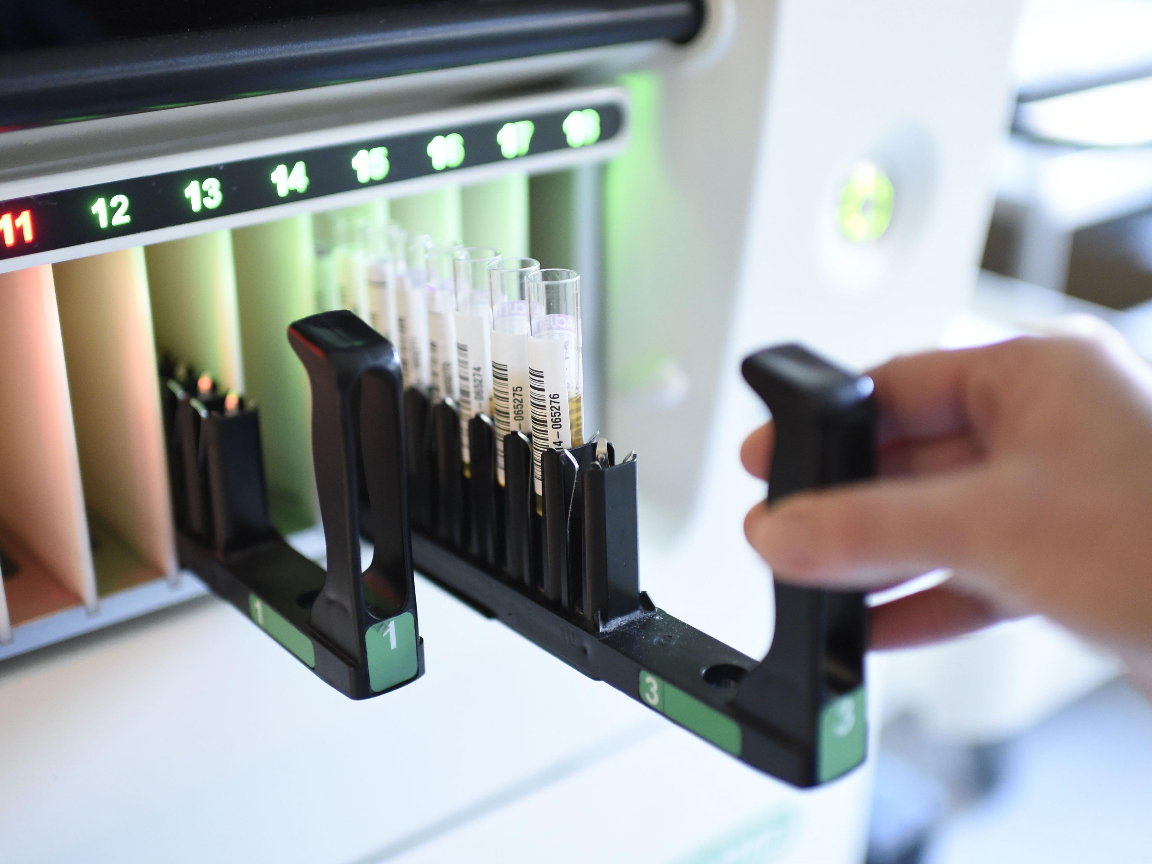 Die mobile Pflege von HIV-Patienten wird in Wien neu aufgestellt.