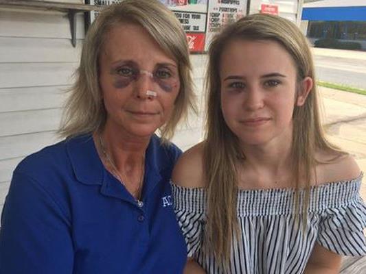 Brutale Attacke auf Mutter und Tochter.